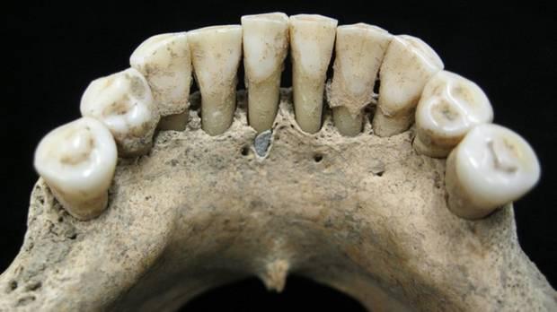 Diese Zähne einer Nonne aus dem Mittelalter enthielten Spuren von Lapis Lazuli