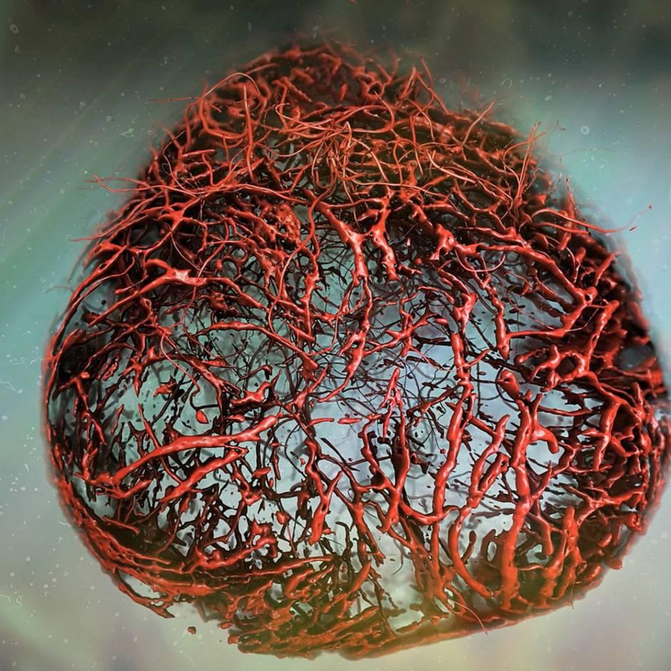 Stammzellenforschung: Diabetes-Durchbruch: Warum sich 420 Millionen Zuckerkranke freuen dürfen
