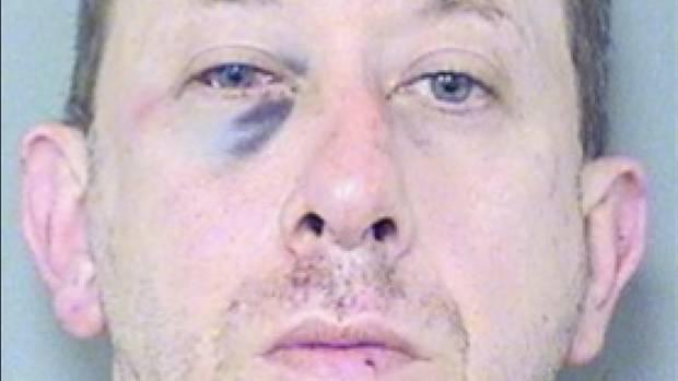 Ein blasser Mann mit blau geschlagenem rechten Augen schaut auf einem Polizeibild gerade in die Kamera