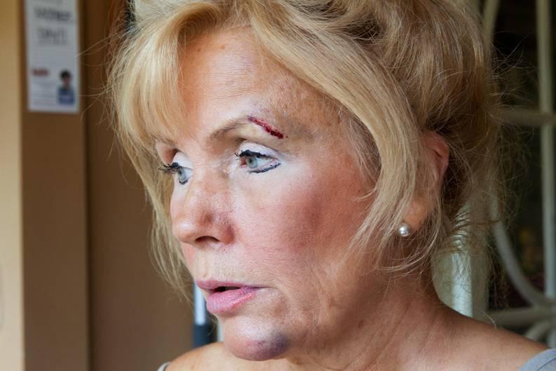 Spitz' Mutter hat Blessuren im Gesicht an Kinn und Augenbraue