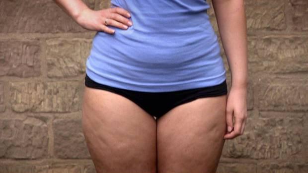Typisch für ein Lipödem ist das unproportionierte Verhältnis eines schlanken Oberkörpers zu breiten Hüften, Beinen und Gesäß