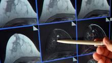 Magnetresonanz-(MR)-Mammographie: ein winziger Tumor in der Brust einer Patientin
