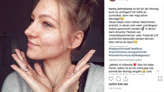 Eine hübsche junge Frau, ob mit Pickeln oder ohne: Model Hanna Bohnekamp
