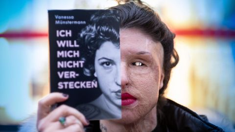 Vanessa Münstermann Säure Opfer Attentat