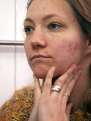 Schön und selbstbewusst trotz Akne: GNTM-Kandidatin und Model Hanna Bohnekamp (26) willauf die Pille lieber verzichten.
