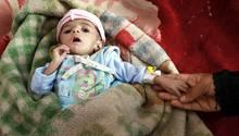 Ein Kind liegt auf einer Station eines Mangelernährungszentrums in Jemens Hauptstadt Sanaa
