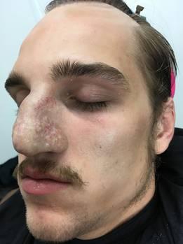 Jonas Dassler zu Beginn seiner täglichen Verwandlungmit angeklebter Nase. Der Übergang von künstlicher Nase und Haut ist nicht zu sehen.