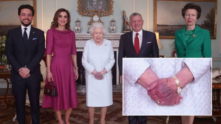 Die linke Hand der britischen Queen ist purpurfarbend angelaufen.