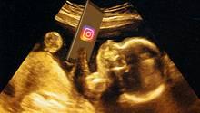 Ungeborenes Baby mit 113.000 Instagram-Followern