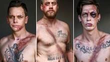 Neuseeland: Überlebt dank Gurt – Unfallopfer posieren für Schock-Kampagne