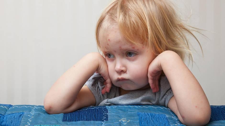 Windpocken: Schulverbot für nicht geimpfte Kinder verhängt