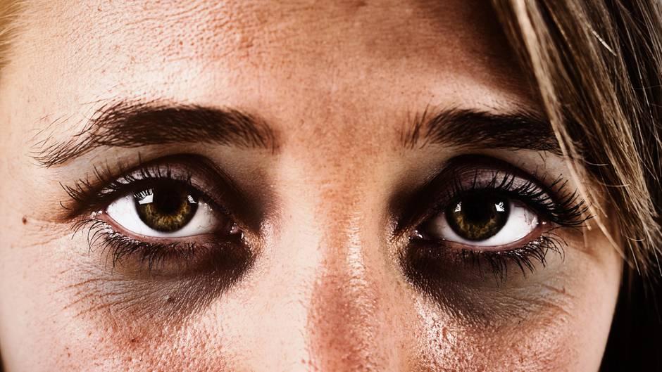 Gesundheit: Ausreichend geschlafen und trotzdem Augenringe? Das könnten die Ursachen sein