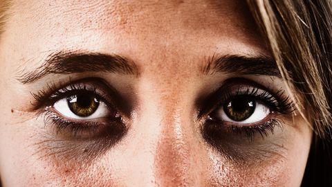 Frische-Kick: Augenpads gegen müde Augen: So mindern Sie Augenringe, Tränensäcke und Falten