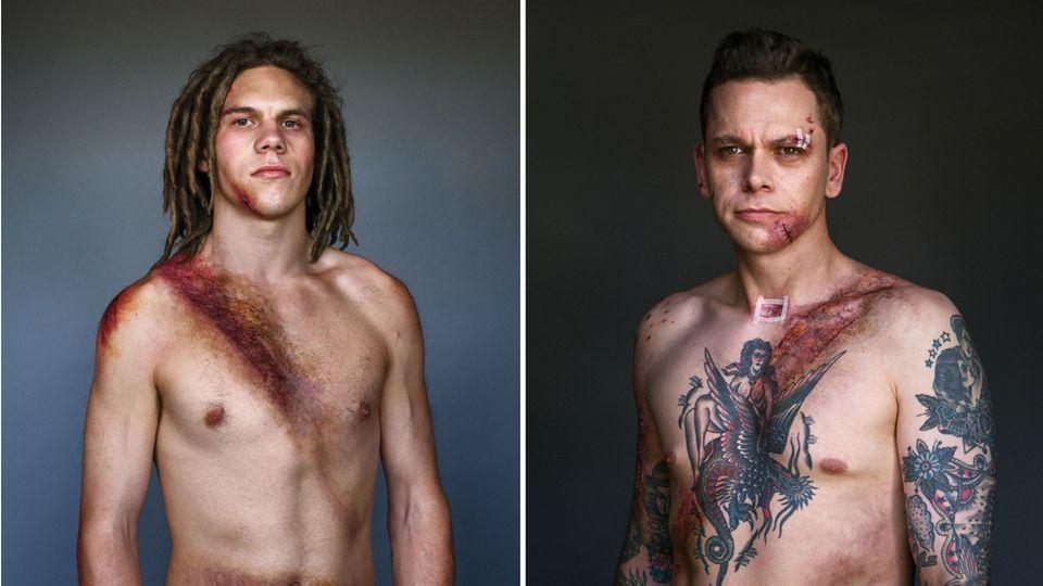 Kampagne: Stolz und blutig - diese Männer verdanken ihr Leben ihrem Sicherheitsgurt