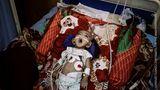 Gewinner in der Kategorie General News Stories: Ein kleines Mädchen schnappt nach Luft im al-Sadaga Hospital in Aden. Es hat einen Herzfehler und benötigt dauerhafte medizinische Hilfe, doch aufgrund des Krieges im Jemen ist die Versorgung mit Sauerstoff und Medikamenten in den Krankenhaus nicht gewährleistet.