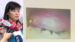Taiwan: Frau kommt mit geschwollenem Lid zum Arzt – der traut seinen Augen nicht