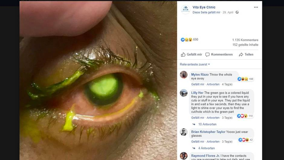 377550f831dc Arzt postet Gruselfoto  Darum sollten Sie nie mit Kontaktlinsen ...