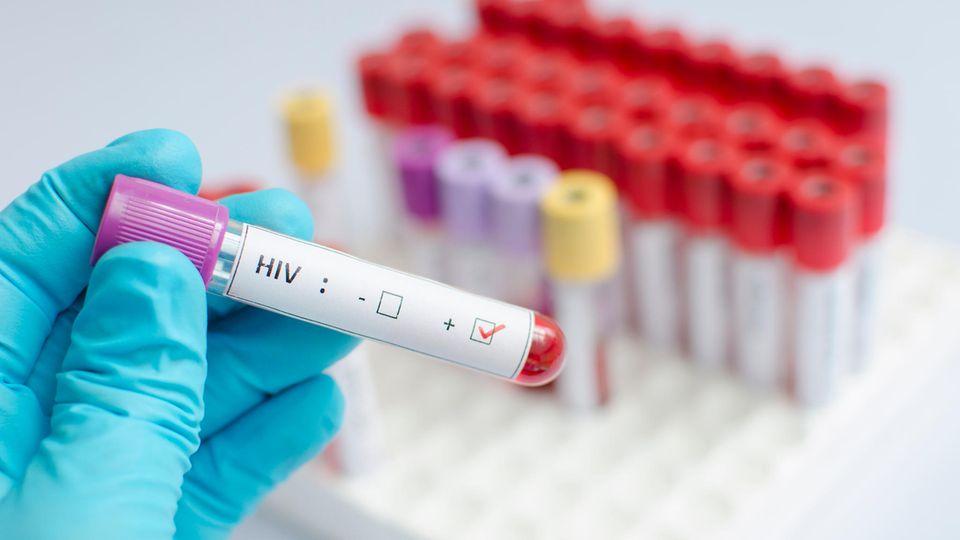 Aids-Medikament stoppt HIV-Übertragung beim Sex