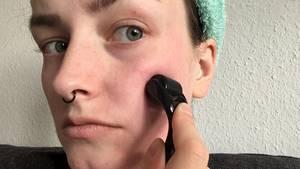 Microneedling für zu Hause: Hilft der Dermaroller gegen Pickelmale?