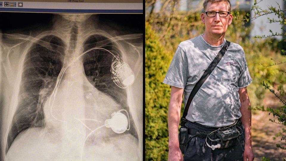 Die Röntgenaufnahme zeigt Gerds Oberkörper. Unten rechts sieht man das Kunstherz, das die Ärzte an sein krankes Herz genäht haben. Oben rechts haben sie ihm einen Defibrillator implantiert, der Stromschläge auslöst, sobald sein Herz aufhört zu pumpen.