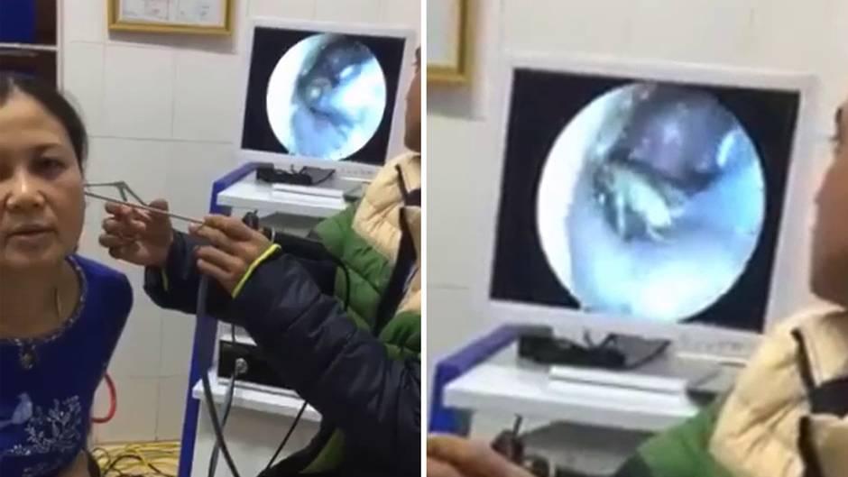 Befund in Vietnam: Frau geht wegen Ohrenschmerzen zum Arzt – was der im Gehörgang findet, kann fliegen