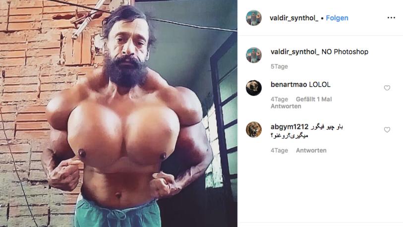 Valdir Segato spritzt sich ein Ölgemisch in die Muskeln, um seinen Bizeps auf 58 cm zu vergrößern
