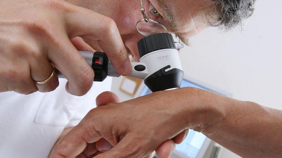 Hautkrebs-Check