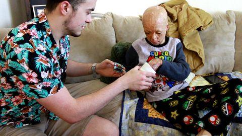 Handprothesen für Zehnjährigen