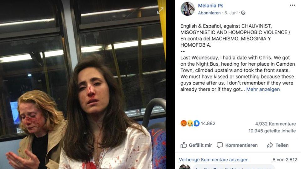 Melania trägt eine weiße Bluse, die voller Blut ist. Dahinter sitzt die blonde Chris mit blutverschmiertem Gesicht