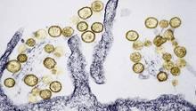 Das Hantavirus breitet sich wieder verstärkt in Deutschland aus