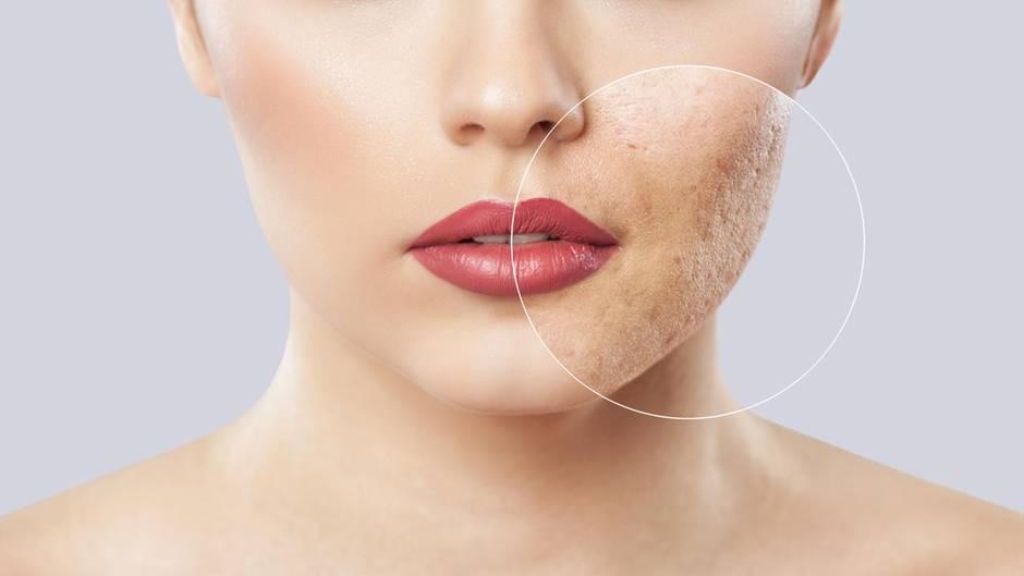 Mitesser sorgen für ein schlechtes Hautbild