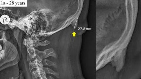 Das Röntgenbild eines 28-jährigen Mannes - der Pfeil zeigt auf einen knöchernen Vorsprung am Hinterkopf