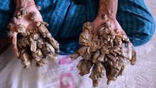 """Dhaka, Bangladesch. Rindenartige Wucherungen bedecken die Hände und Füße von Abul Bajandar. Der als """"Baum-Mann"""" bekanntgewordene 28-Jährigeleidet an einem Gendefekt. Nun will er sich die Hände amputieren lassen, um die """"unerträglichen Schmerzen"""" zu lindern."""