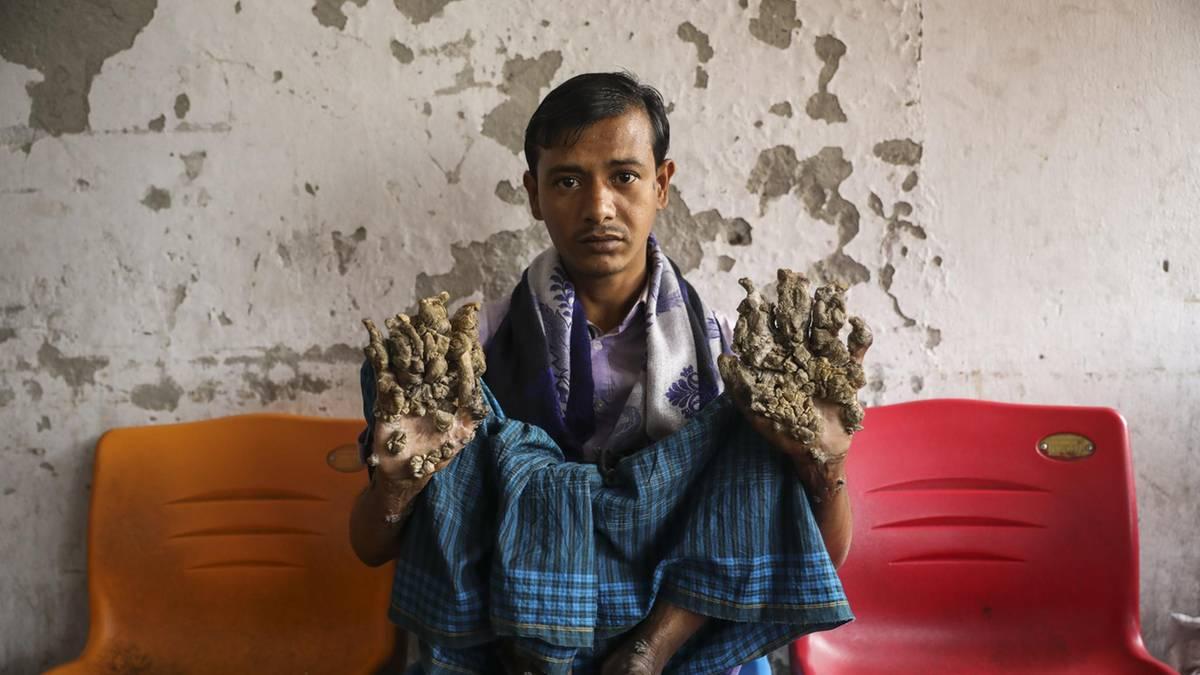 """""""Baummann"""" in Bangladesch: """"Ich habe die Ärzte gebeten, meine Hände abzutrennen"""""""