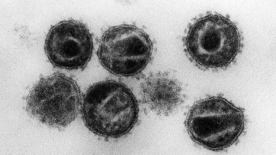Der Aids-Erreger HIV als elektronenmikrospkopische Aufnahme