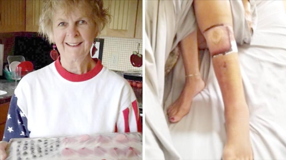 Eine Frau mit Wunde am Bein.