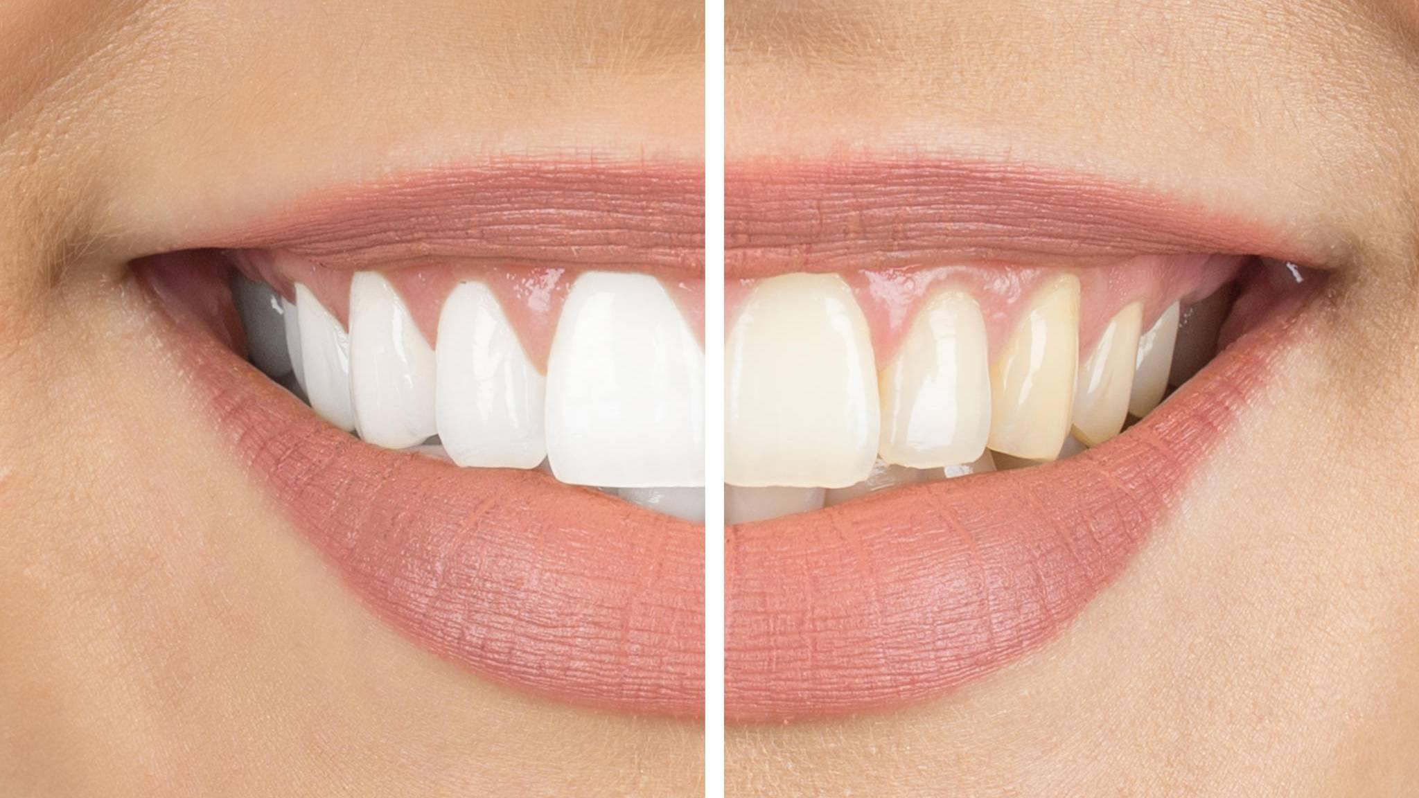 Weißere zähne durch professionelle zahnreinigung