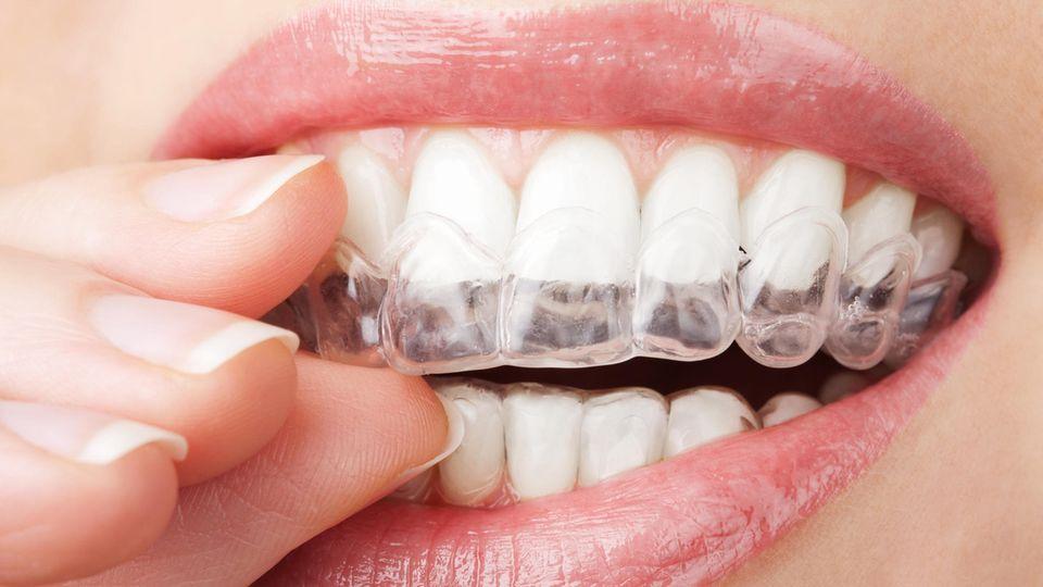 Zähne bleachen mit Bleichmittel