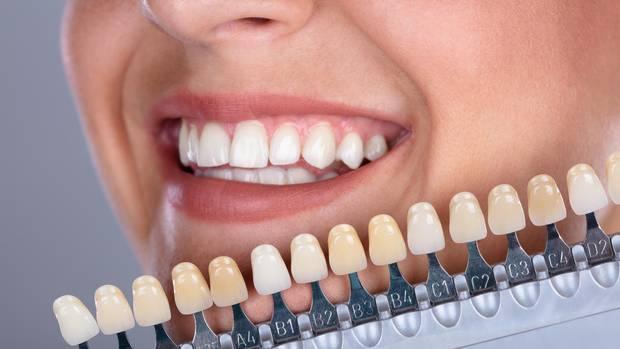 Ein professionelles Bleachingder Zähne ist nur beim Zahnarzt möglich