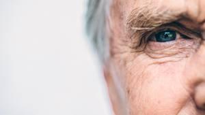 Augeninfarkt