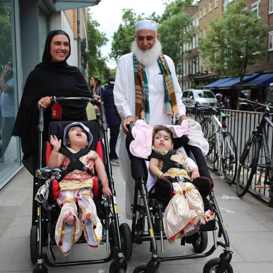 London: Am Kopf zusammengewachsen: Britische Ärzte trennen siamesische Zwillinge Safa und Marwa