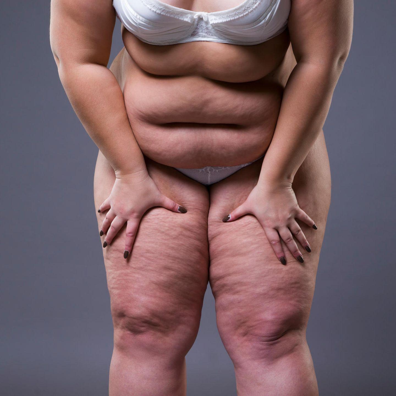 Mädchen fette Dicke Mädchen