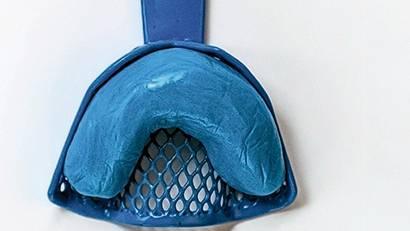 Abdruckform für durchsichtige Zahnschienen/Aligner