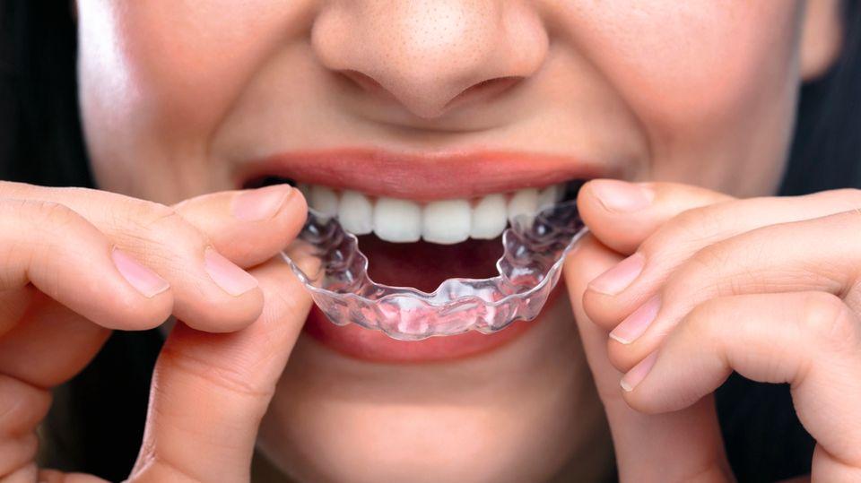 Durchsichtige Zahnschienen für Erwachsene