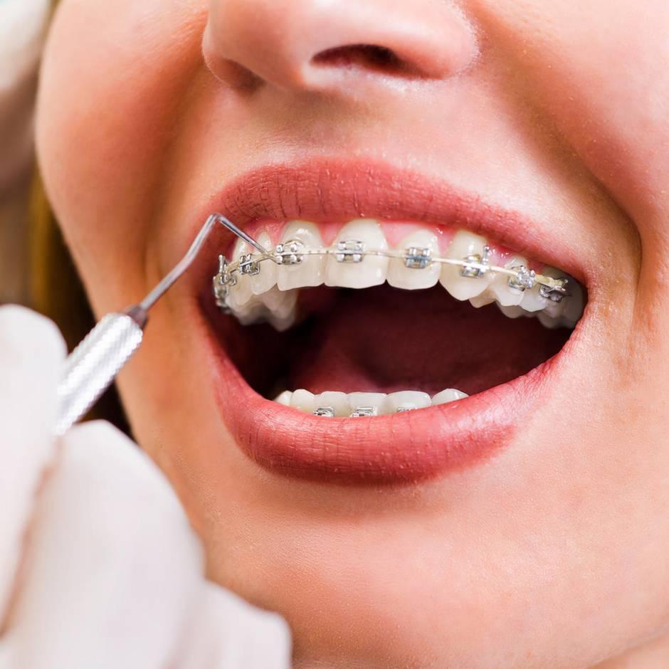 Kieferorthopäden: Goldgrube Mund: Wie Ärzte mit Zahnspangen Kasse machen