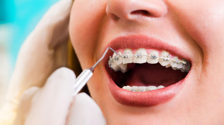Transparente Zahnspangen vor und nach dem Abnehmen