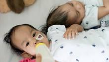 Die siamesischen Zwillingsmädchen Nima und Dawa nach ihrer erfolgreichen Trennungsoperation