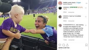 Kleiner Junge und Fußballerin Carson Picket berühren sich mit ihren Armstümpfen