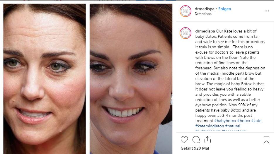 Botox-Gerüchte um Herzogin Kate