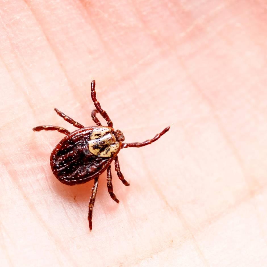 Schutz vor Infektion: Zeckenbiss, und jetzt? Was Sie tun sollten - und was auf keinen Fall